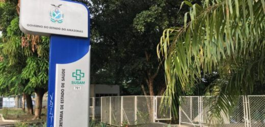 MP-AM apura irregularidades em contrato da Susam com empresa Raio-X